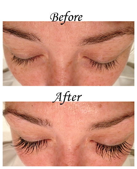 before-and-after-eyelash-extensions